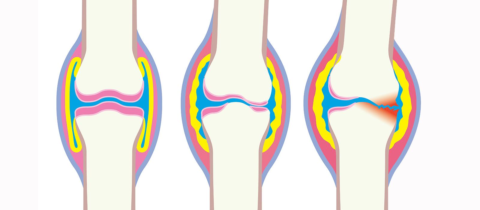L'arthrose et la douleur : comment gérer ?